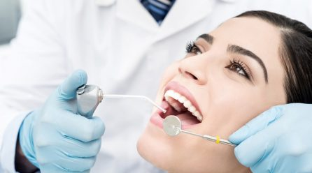 Types of Teeth Whitening Systems to take into account