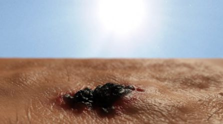 10 Skin Cancer Facts It is likely you Didn't Know