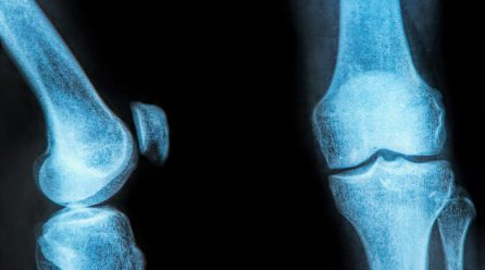 Home Remedies for Meniscus Tear