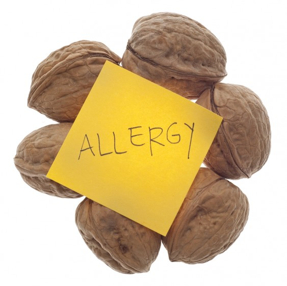 How to Avoid Food Allergies together with Intolerances